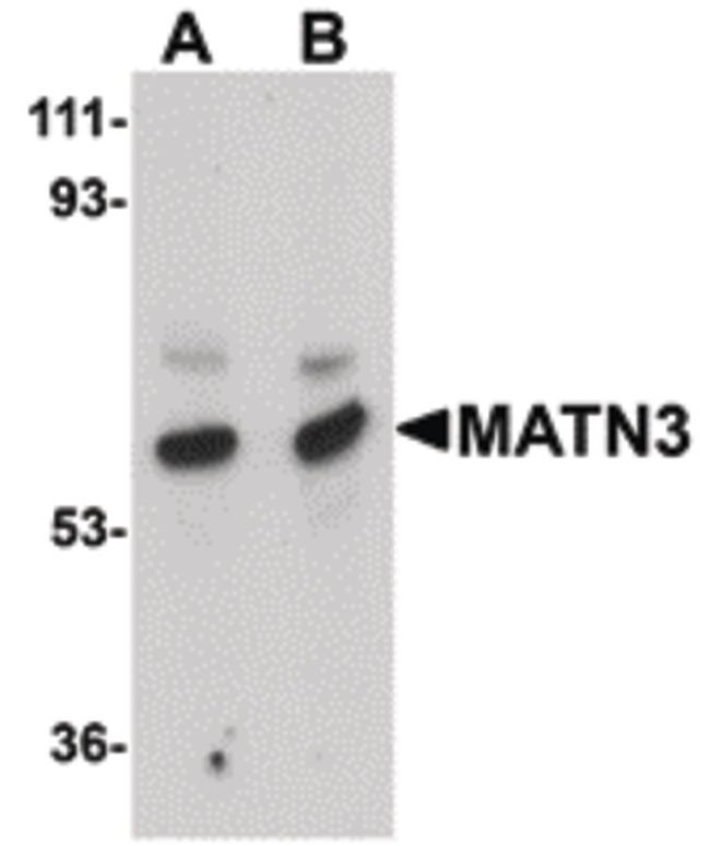 MATN3 Antibody (PA5-20727) in Western Blot