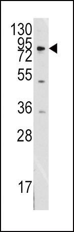 MCK10 Antibody (PA5-14700) in Western Blot