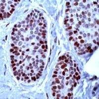 MCM2 Antibody (PA1-38099) in Immunohistochemistry
