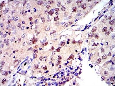 MCM2 Antibody (MA5-15895) in Immunohistochemistry