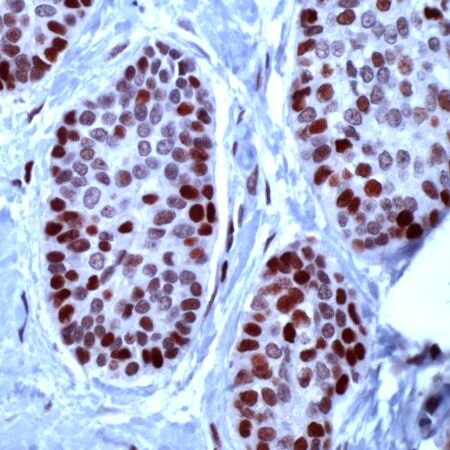 MCM2 Antibody (PA5-32484) in Immunohistochemistry
