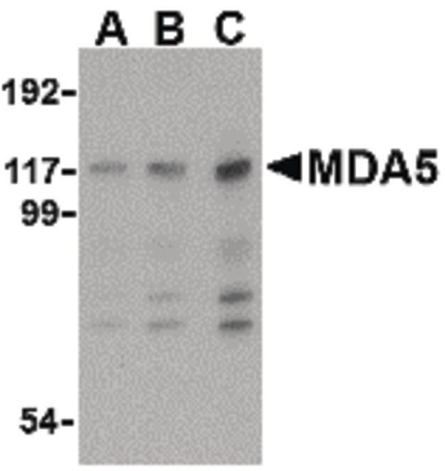 MDA5 Antibody (PA5-20338) in Western Blot