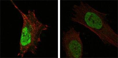 MDMX Antibody (MA5-15432) in Immunofluorescence