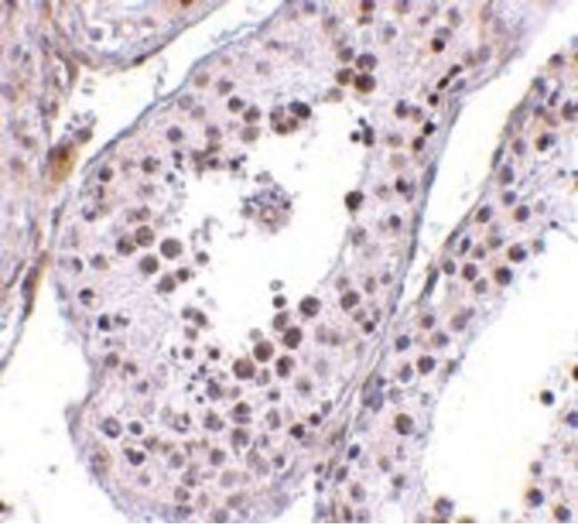 MED4 Antibody (PA5-20571) in Immunohistochemistry