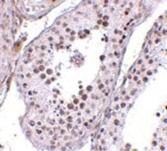 MED4 Antibody (PA5-20571)