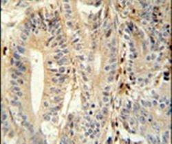 MEP1A Antibody (PA5-25752)
