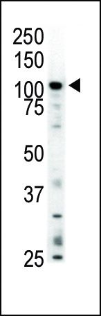 MERTK Antibody (PA5-14701) in Western Blot
