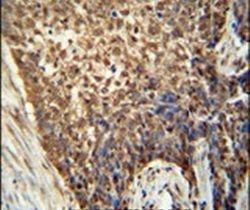 METTL4 Antibody (PA5-23881)