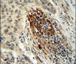 MFAP4 Antibody (PA5-24865) in Immunohistochemistry