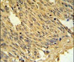 SLC25A28 Antibody (PA5-25168) in Immunohistochemistry