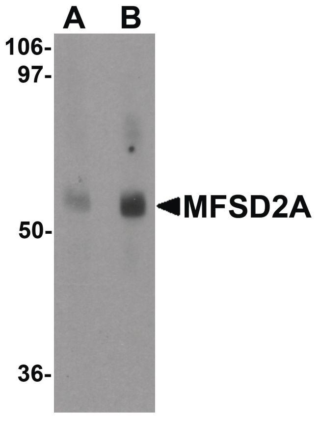 MFSD2A Antibody (PA5-21049) in Western Blot