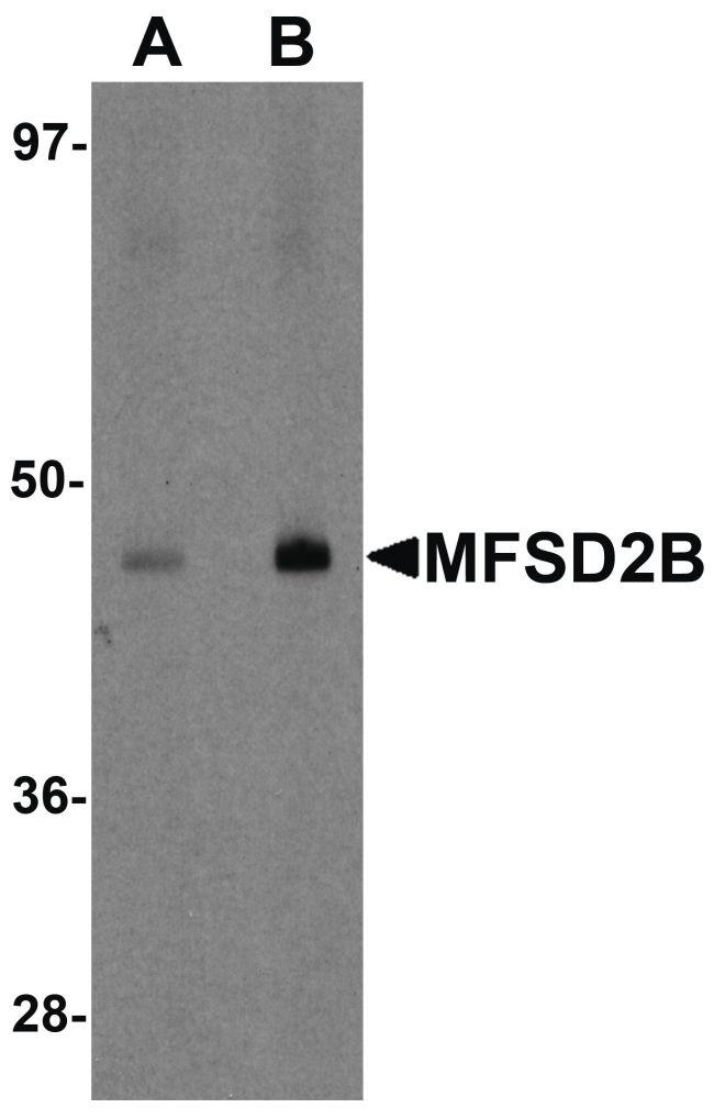 MFSD2B Antibody (PA5-21050) in Western Blot