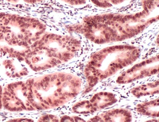 MLH1 Antibody (PA5-32497)