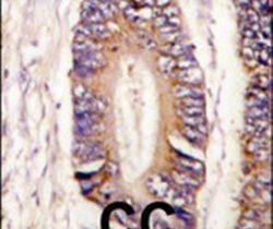MLK4 Antibody (PA5-15229) in Immunohistochemistry