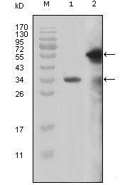 HRX Antibody (MA5-15380) in Western Blot