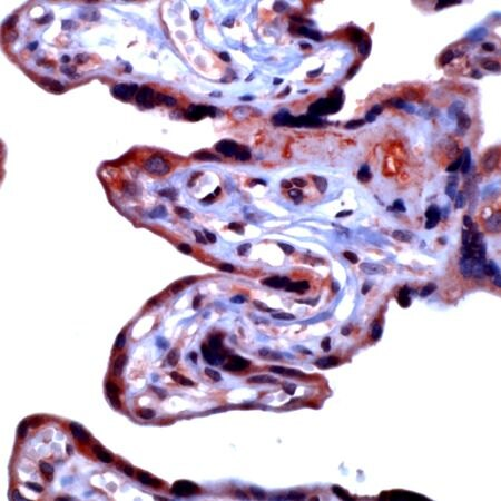 MMP3 Antibody (PA5-32505)