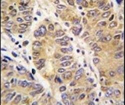 MMP13 Antibody (PA5-13182)