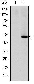 MMP1 Antibody (MA5-15872) in Western Blot
