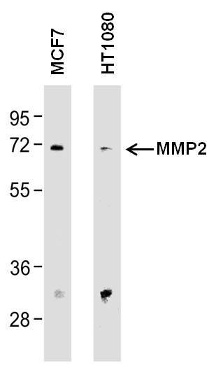 MMP2 Antibody (MA1-772) in Western Blot