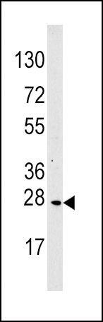 MOB4A Antibody (PA5-13769) in Western Blot