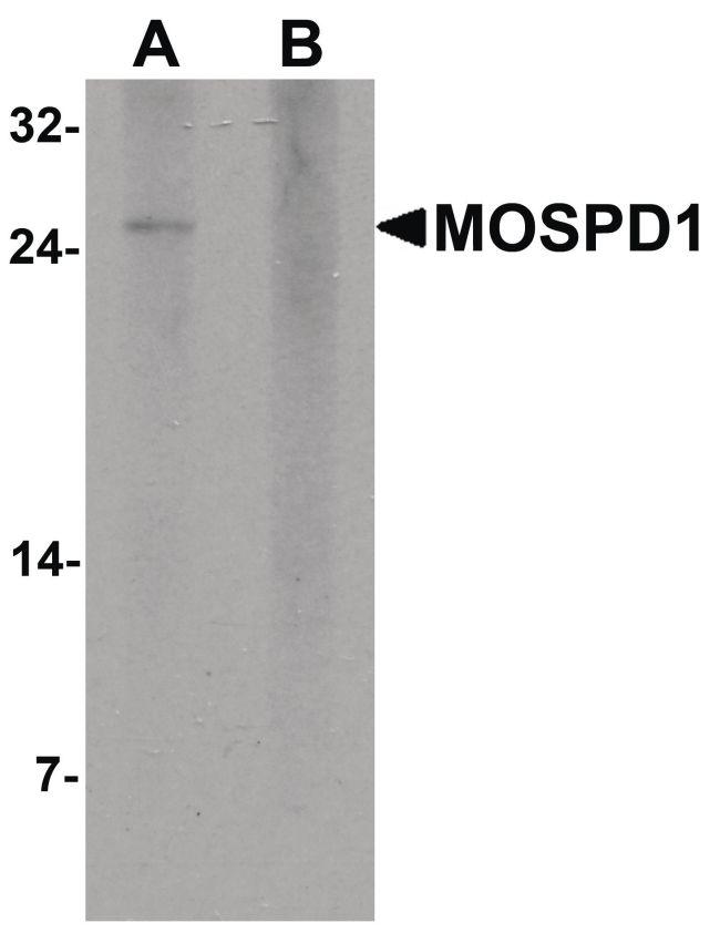 MOSPD1 Antibody (PA5-34529) in Western Blot