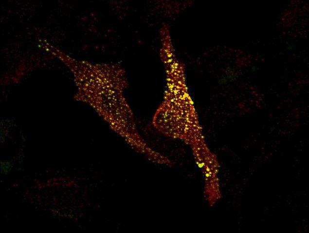 MRCK alpha Antibody (PA1-10038) in Immunofluorescence