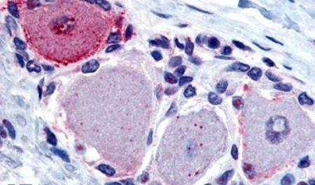 MRGPRX2 Antibody (PA5-32930) in Immunohistochemistry (Paraffin)
