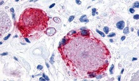 MRGPRX3 Antibody (PA5-33953)