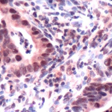 MSH3 Antibody (PA5-32508) in Immunohistochemistry