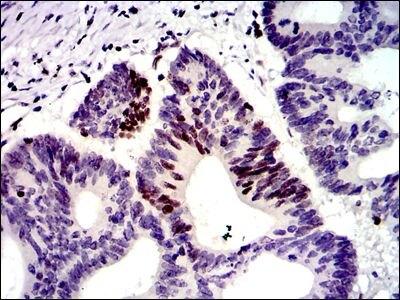 MSH6 Antibody (MA5-17129) in Immunohistochemistry