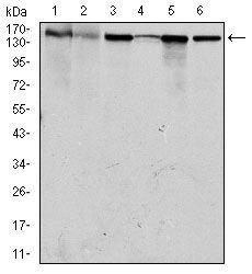 MSH6 Antibody (MA5-17129) in Western Blot