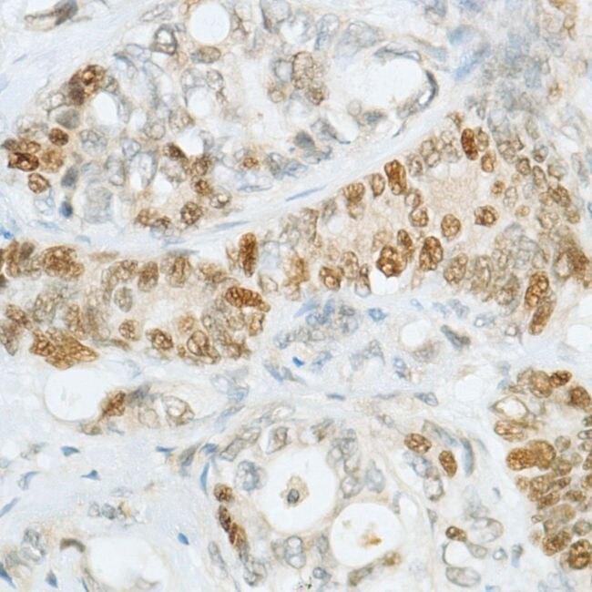 MSH6 Antibody (MA5-16380)