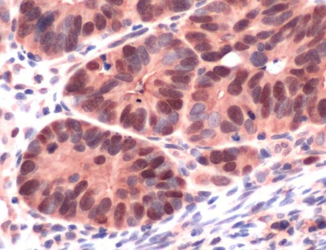 MSH6 Antibody (MA5-16381) in Immunohistochemistry