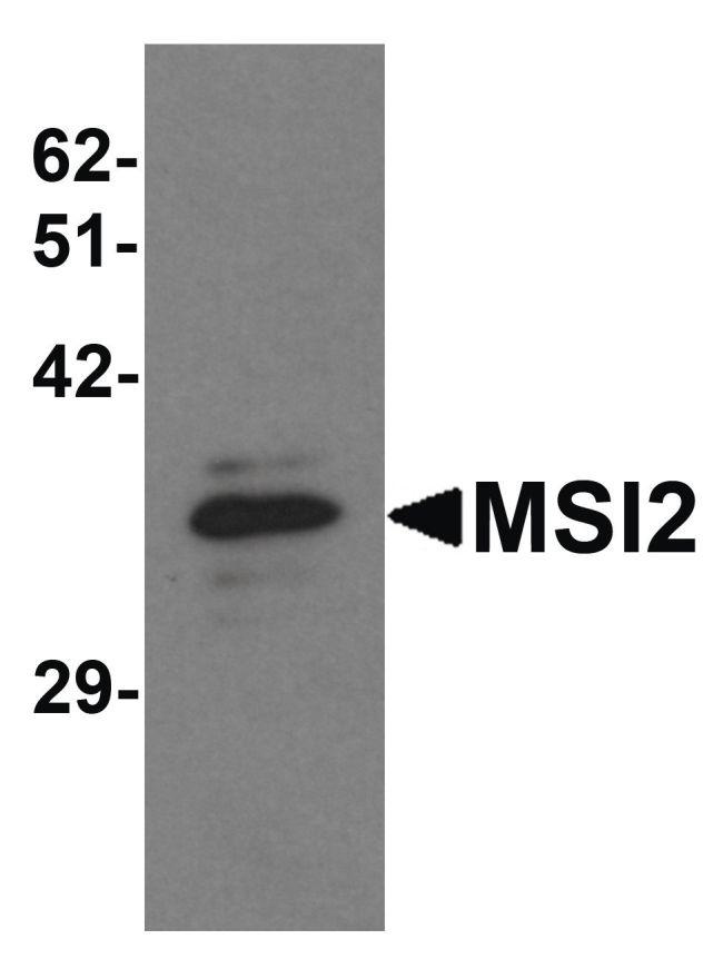 MSI2 Antibody (PA5-21145) in Western Blot