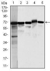 Moesin Antibody (MA5-17130) in Western Blot