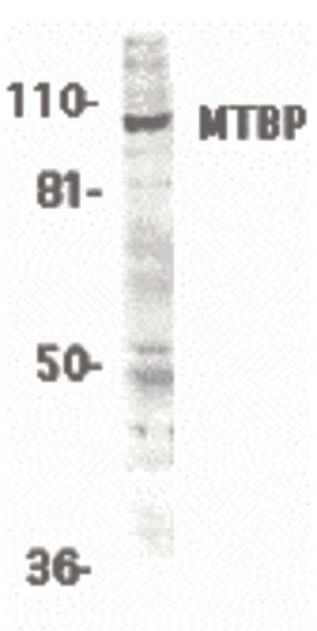MTBP Antibody (PA5-19979) in Western Blot
