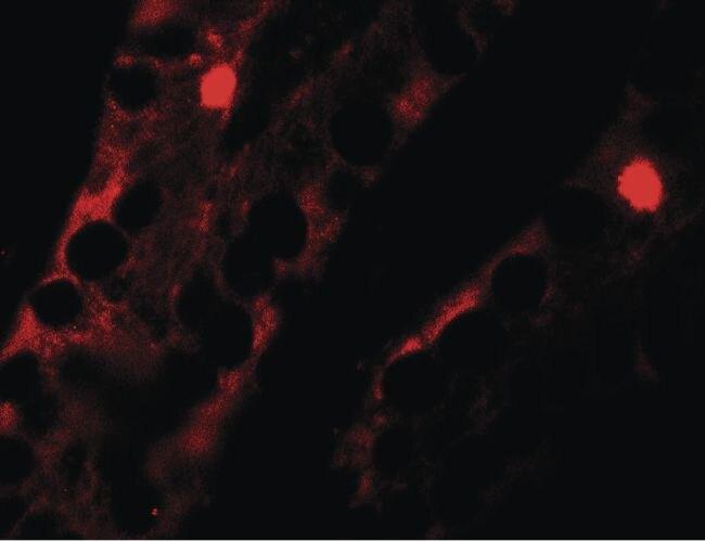 MTERFD2 Antibody (PA5-34531)