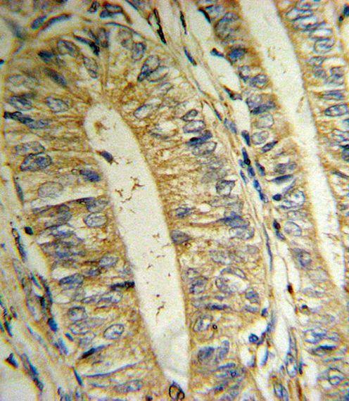 MTHFD2 Antibody (PA5-14248)