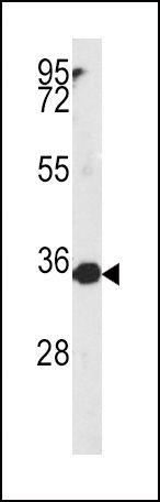 MTHFD2 Antibody (PA5-14248) in Western Blot