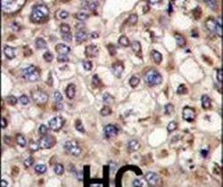 MTMR4 Antibody (PA5-13711)