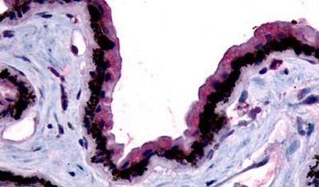 MTNR1B Antibody (PA5-32935)