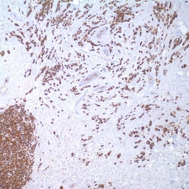 MUC1 Antibody (MA1-35698)