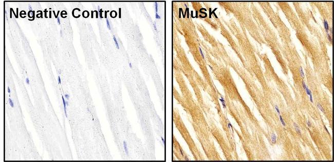 MUSK Antibody (PA1-1741) in Immunohistochemistry (Paraffin)