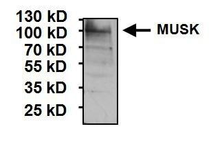 MUSK Antibody (PA1-1741) in Western Blot