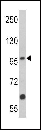 MUSK Antibody (PA5-14703) in Western Blot