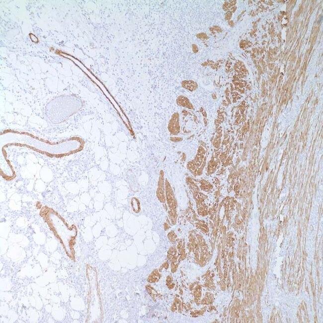 Myosin Skeletal Muscle Antibody (MA1-35718)