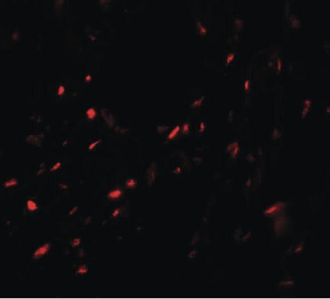 MYZAP Antibody (PA5-21116) in Immunofluorescence