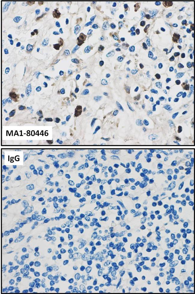 Macrophages / Monocytes Antibody (MA1-80446) in Immunohistochemistry