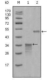 Mammaglobin A Antibody (MA5-15479) in Western Blot