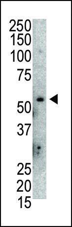 MDM2 Antibody (PA5-11353) in Western Blot